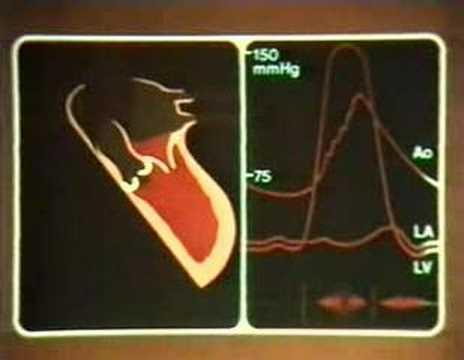 Alpha-1-Blocker Hypertension