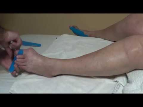Подагра, массаж, компрессы, тейпы при подагре, gout, massage and compresses for gout, 痛風的按摩和壓縮