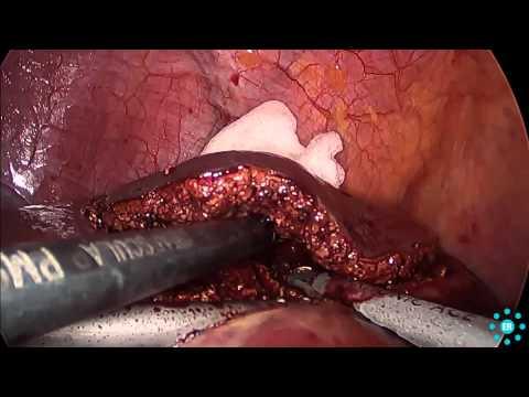 IFAC prostata