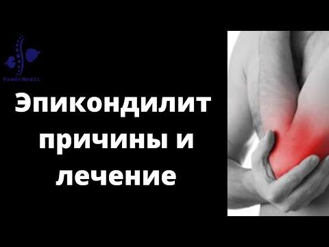 Боль в области локтевого сустава - как лечить эпикондилит!