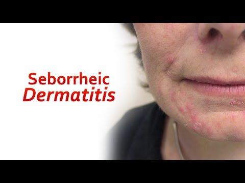 Dermatite di atopic al bambino circa un anno