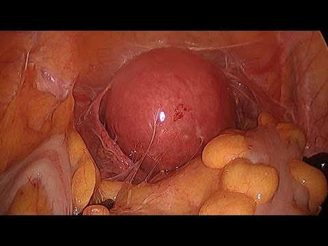 Complex Hysterectomy Surgery Made Easy on Woman with Fibroids and Adhesions