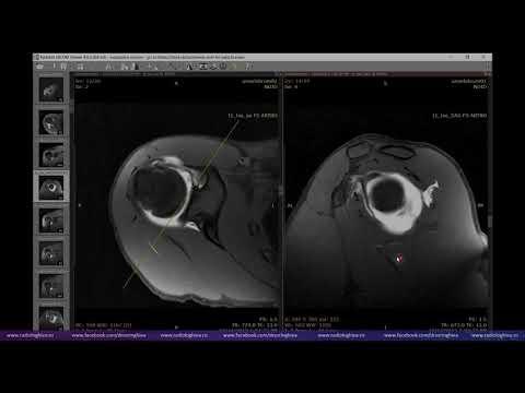 Durerea osoasă și articulară provoacă tratament
