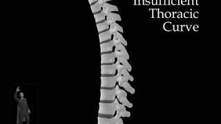 Insufficient Thoracic Curve