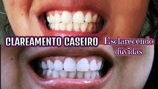 Dentes Brancos Em 2 Minutos Receita Caseira ฟร ว ด โอออนไลน ด