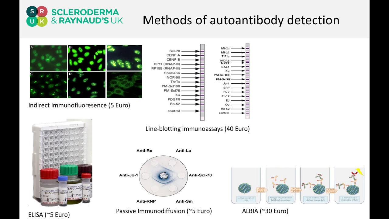 Dr John Pauling talks about auto-antibodies