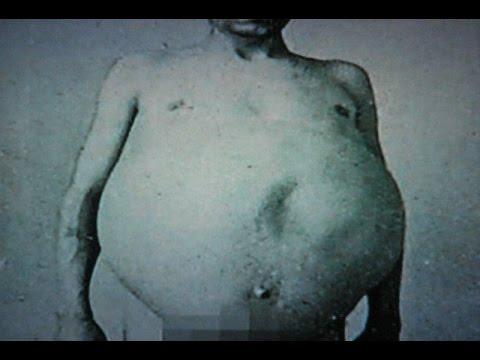 Лечение медом рака простаты