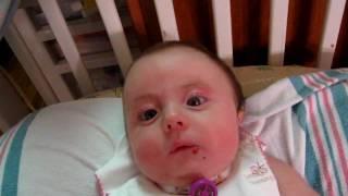 Trach Baby Rebekah Talking With Passy Muir (Speaking) Valve