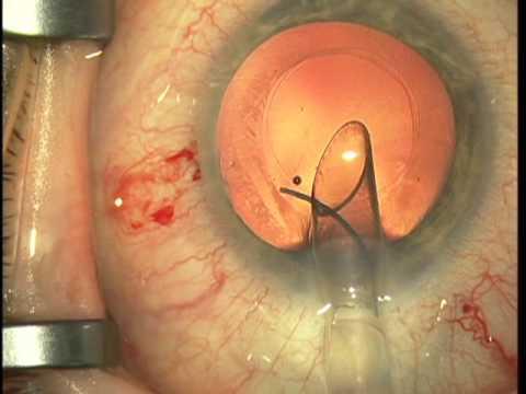 Intraoperative Choroidal Hemorrhage