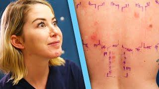 Women Get Makeup Allergy Tests - Video Youtube