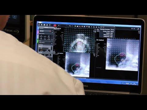 Carrousel video: Fusie biopsie Prostaat met MRI