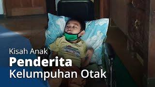 Menderita Kelumpuhan Otak, Seorang Anak di Sukoharjo Hanya Bisa Berbaring di Kasurnya