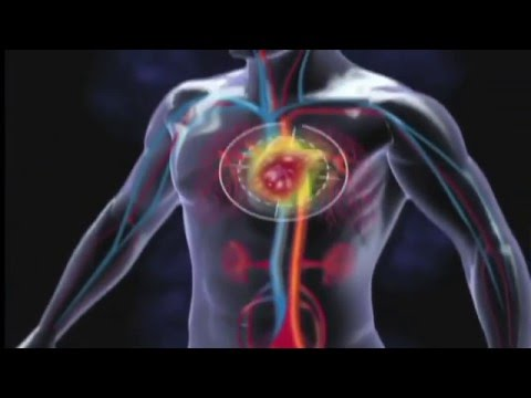 Video Peripheral Artery Disease - its Symptoms and Risk Factors