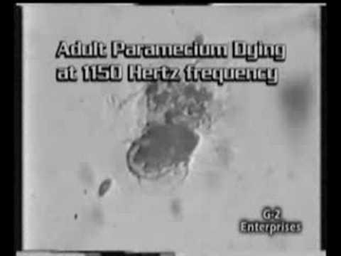 Metodi di arricchimento di una ricerca di uova di helminths