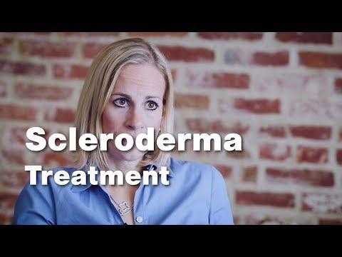 visszér scleroderma visszér a kis medence tüneteiben