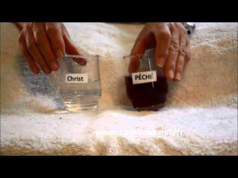 Le traitement de la varicosité à astrakhani