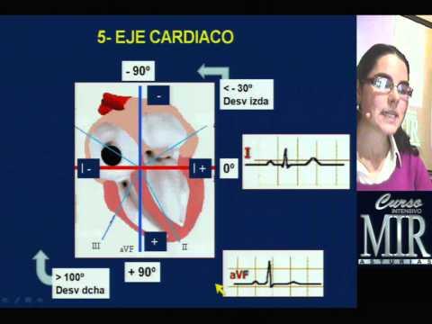 Baja presión de la sangre cuando la taquicardia