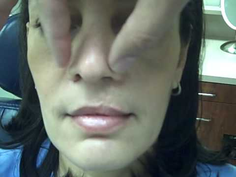 Dr. Jeffrey Epstein – Female Patient, Revision of a Cleft Nose Repair