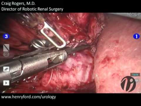 Robotic Partial Nephrectomy - Step 6: Techniques for Hilar Clamping