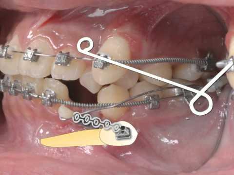 Выведение нижнего ретенированного клыка с помощью системы Damon