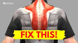 How to Fix Muscle Knots in Your Neck and Shoulder in 30 SECONDS