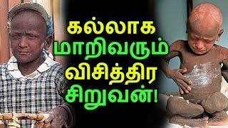 கல்லாக மாறிவரும் விசித்திர சிறுவன் | Tamil Facts | Latest News | World Seithigal