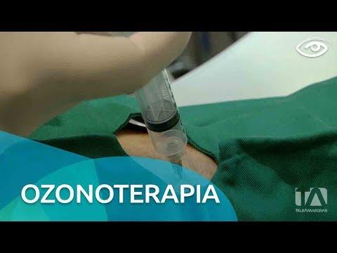 Unguente în tratamentul osteocondrozei cervicale