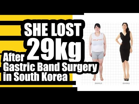 Before and After Gastric Band Surgery in South Korea