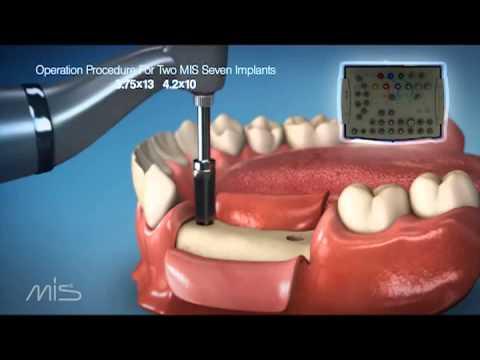 Процедура установки имплантатов MIS Seven