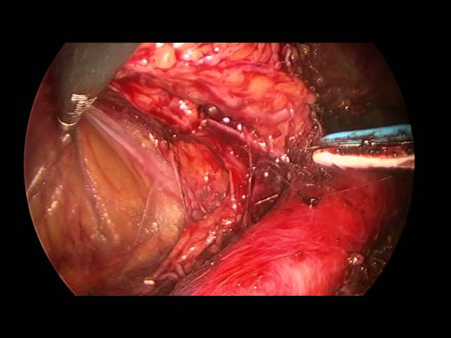Extraperitoneal Aortic Lymphadenectomy AAGL