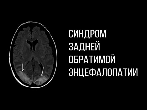 PRES синдром задней обратимой энцефалопатии