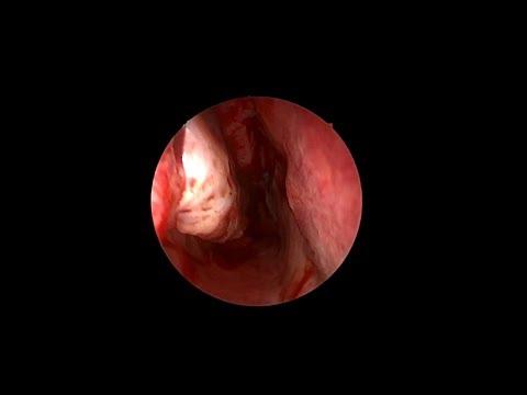 Επεξεργασία kardosalom της υπέρτασης