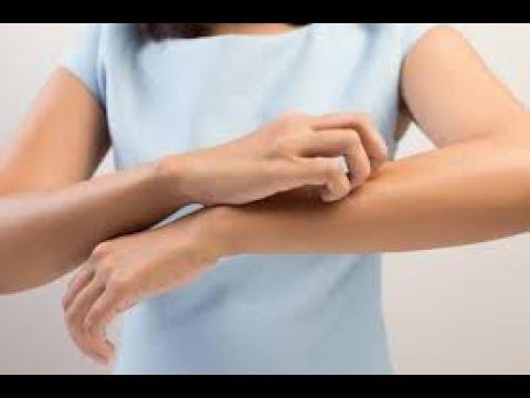 O eczema molhado conveniente como tratar