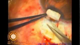 Mitomicinli trabekülektomi