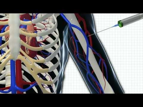 Welche Übungen kann nicht an der Brustwirbelsäule Osteochondrose erfolgen