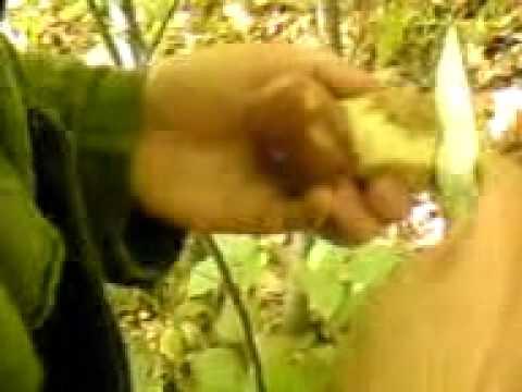 Che trattare calzature di trattamento di un fungo di unghie