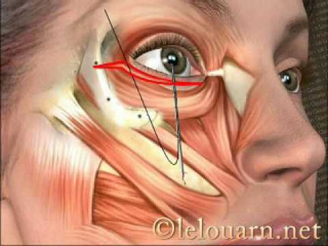 Le masque pour la personne de dimeksida et le gel solkoseril