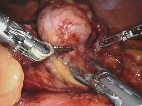 Robotic Retroperitoneal Soft Tissue Sarcoma Excision, da Vinci 'X' System