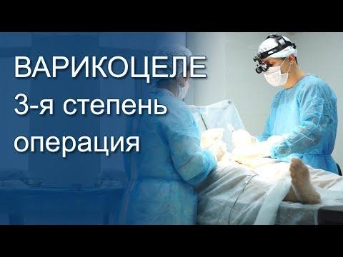 Варикоцеле операция Мармара 3 степень