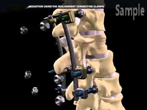 Osteopath bei der Behandlung von Wirbelsäulen Hernie