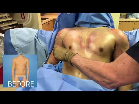 Pec Shoulder Bicep Implant Cosmetic Surgery