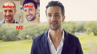 Do KEEPS Hair Loss Treatments Really Work?