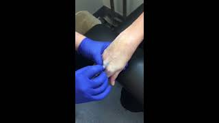 IV Start Training by ER Nurse