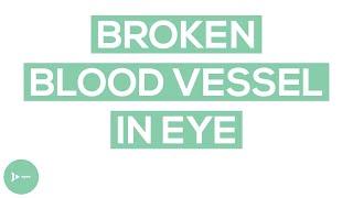 Broken Blood Vessel in the Eye | Subconjunctival Hemorrhage Explained | IntroWellness