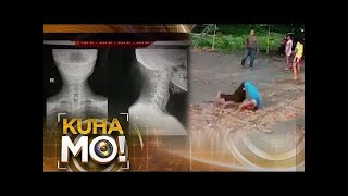 """""""Kuha Mo!"""" shows videos which captured several stunt accidents including a tumbling accident resulting in neck injury.  For more Kuha Mo! videos click the link below: http://bit.ly/KuhaMo2019  For more Mission Possible videos click here: http://bit.ly/MissionPossible_2019  For more breaking news, see the link below: https://www.youtube.com/playlist?list=PLgyY1WylJUmgUZIc2SIYn8qlJaxdA0Dfg  Subscribe to the ABS-CBN News channel! - http://bit.ly/TheABSCBNNews  Visit our website at http://news.abs-cbn.com Facebook: https://www.facebook.com/abscbnNEWS Twitter: https://twitter.com/abscbnnews Instagram: https://www.instagram.com/abscbnnews  #KuhaMosaABSCBN #KuhaMo #ABSCBNNews"""