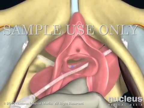 Предстательная железа структура не однородна