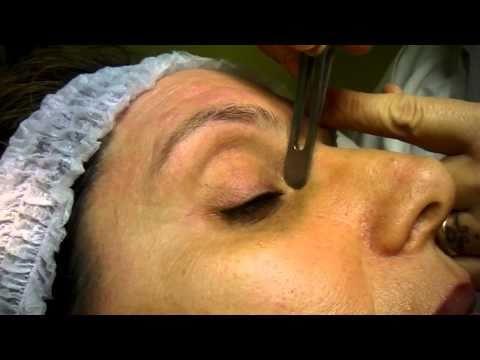 Fotografia su dermatite di eczema di psoriasi di mani