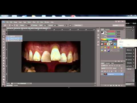 Mejora imagen de fotografia dental con lightroom