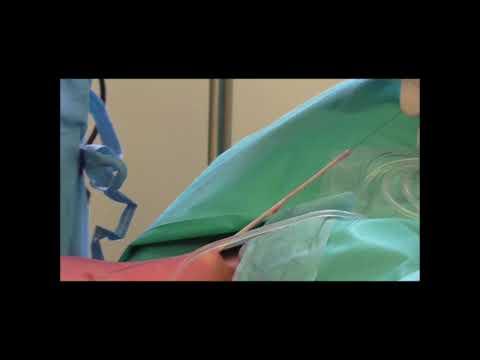 La thrombose des veines à la varicosité