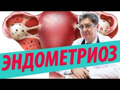 Эндометриоз причины, симптомы, лечение
